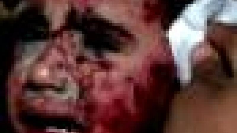 LES DROITS DE L'HOMME SONT MORTS A GAZA