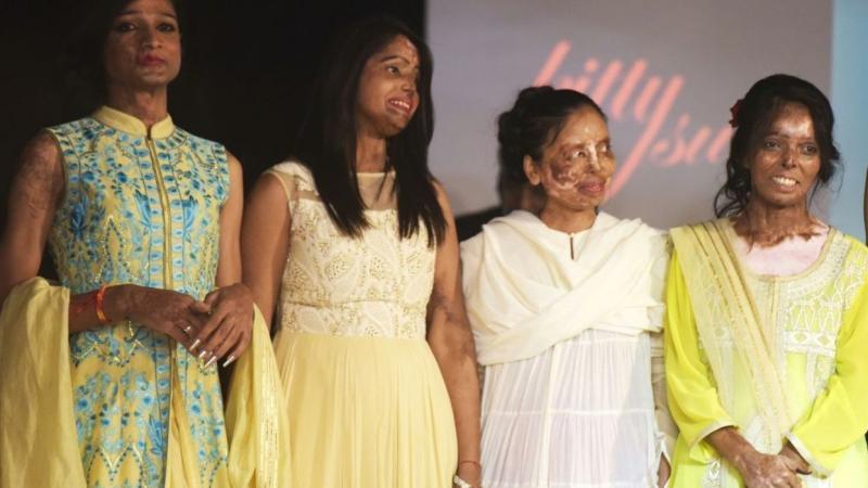 Inde: des victimes d'attaques à l'acide sur le podium d'un défilé haute couture